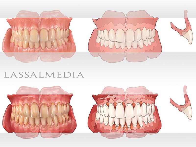 LassalMedia - False Teeth & More for Print and Web Application – Photorealistic & Vector