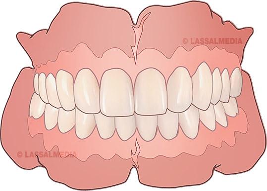 LassalMedia-Dental-Candulor