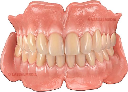 LassalMedia - Teeth visualization photorealistic and vector